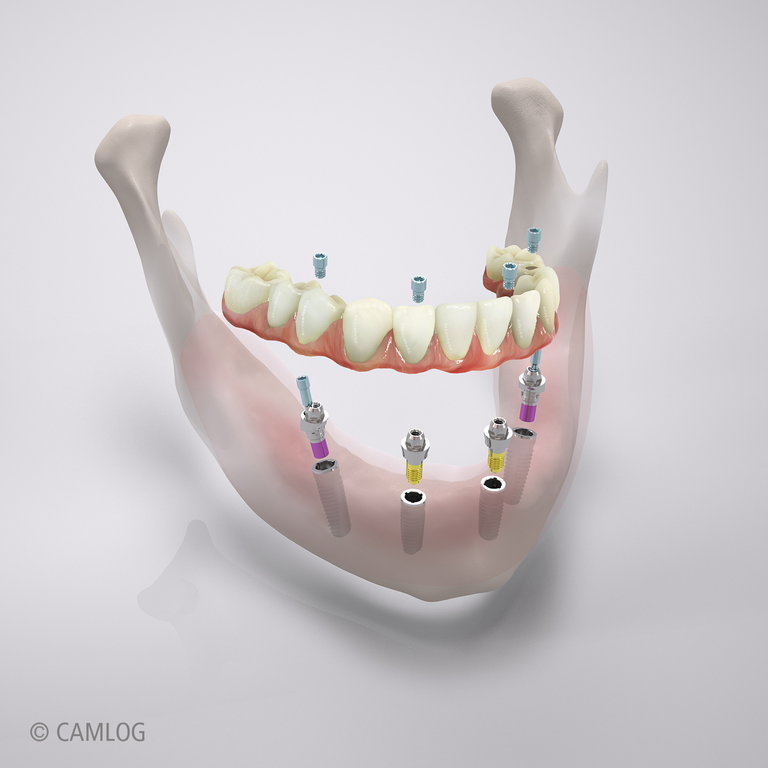 CAMLOG Implantat